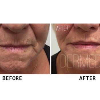 cosmetic clinic perth