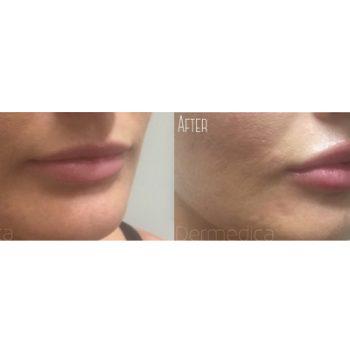 perth cosmetic clinic