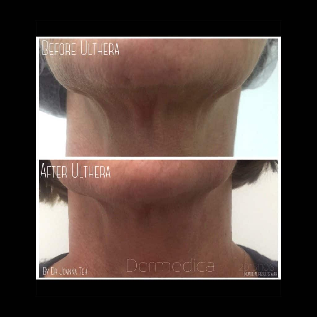 Cosmetic Treatment Before and After