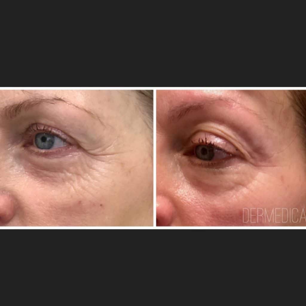 Cosmetic Treatment Perth
