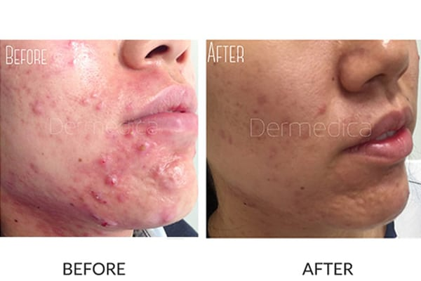 Acne & Acne Scarring