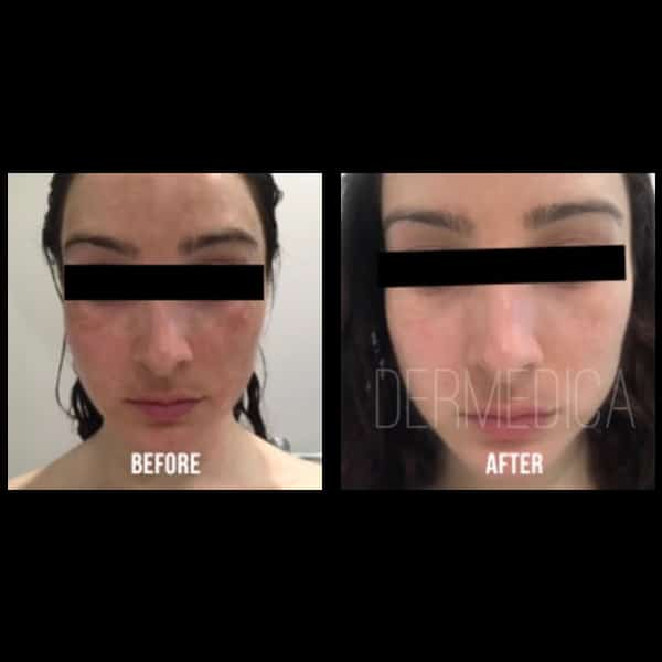Non-surgical Freckle Treatment | Dermedica | Freckle Removal in Perth