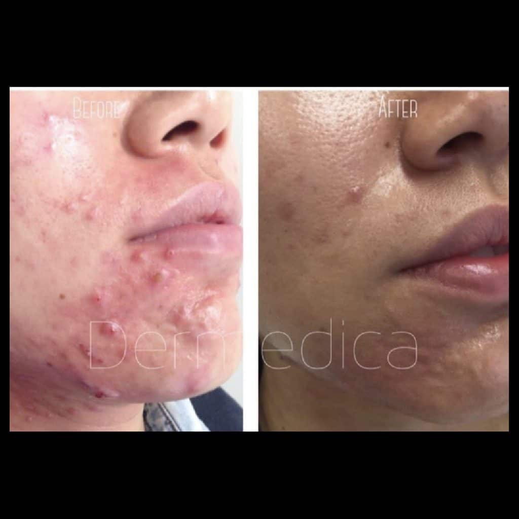 Acne Scarring Treatment   Demedica   Reduce Acne and Acne Scars