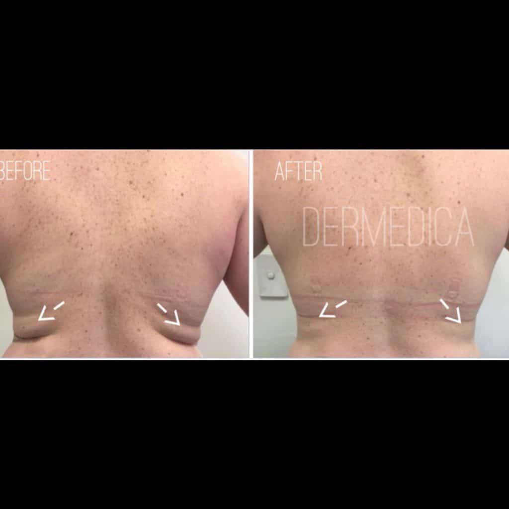 skin tightening perth