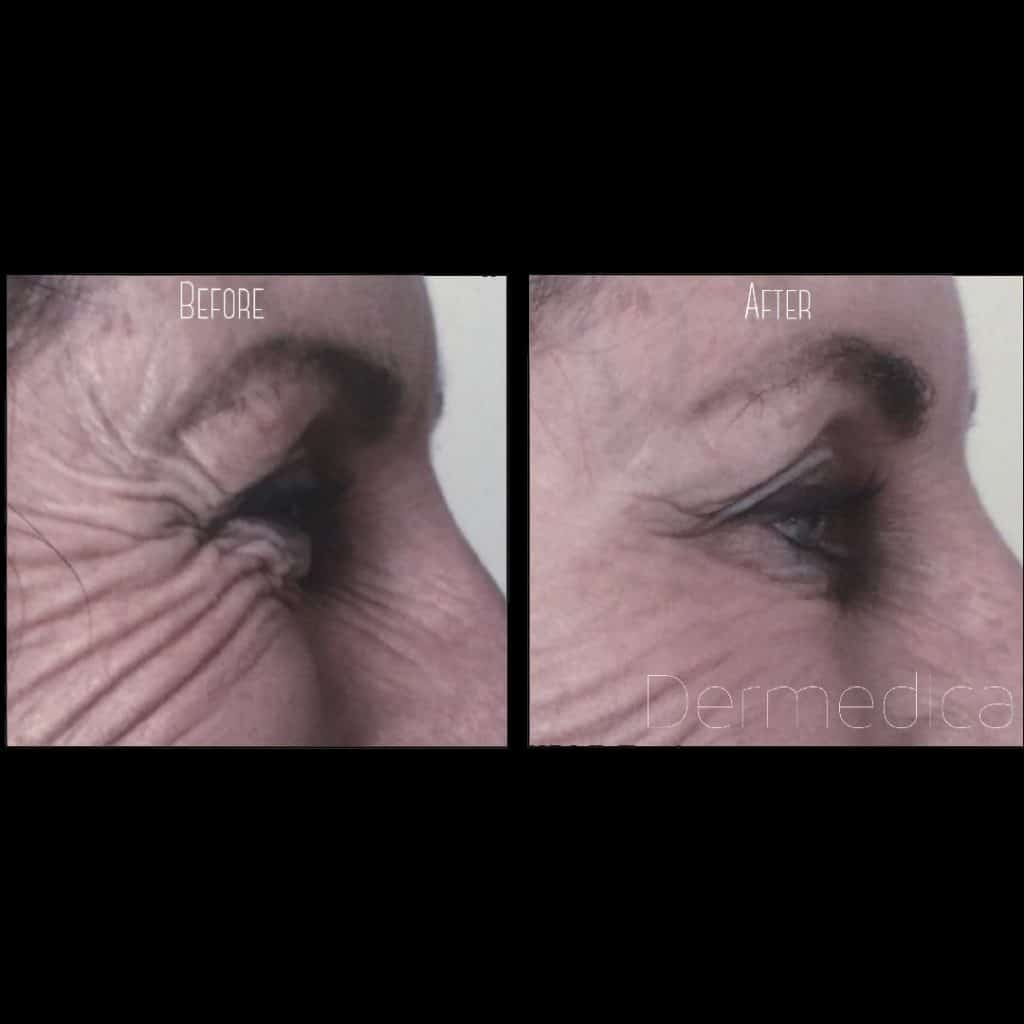 Crows feet anti-wrinkle injection before and after