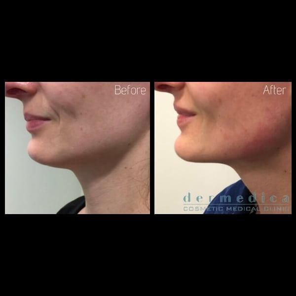 Double Chin Treatment