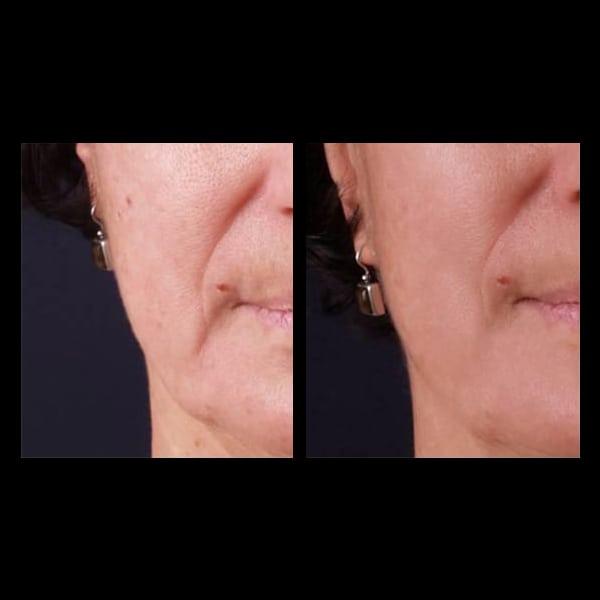 facial treatment perth