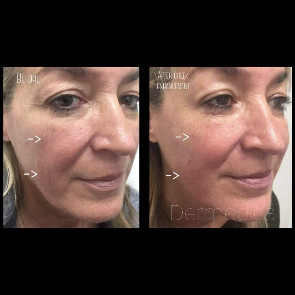 Dermal fillers cheeks before and after