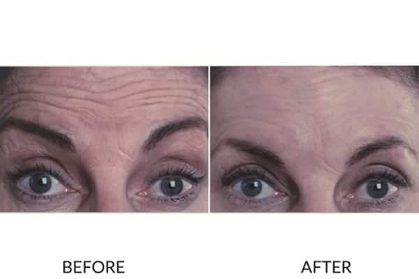 Forehead lines anti-wrinkle injections before and after