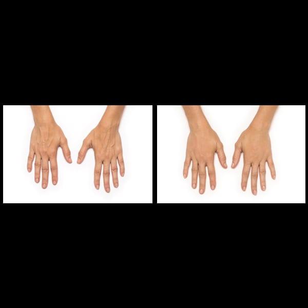 hand rejuvenation perth