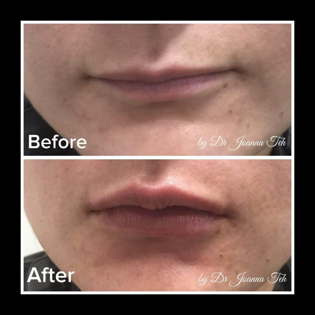 Natural Lip Filler Treatment | Demedica |