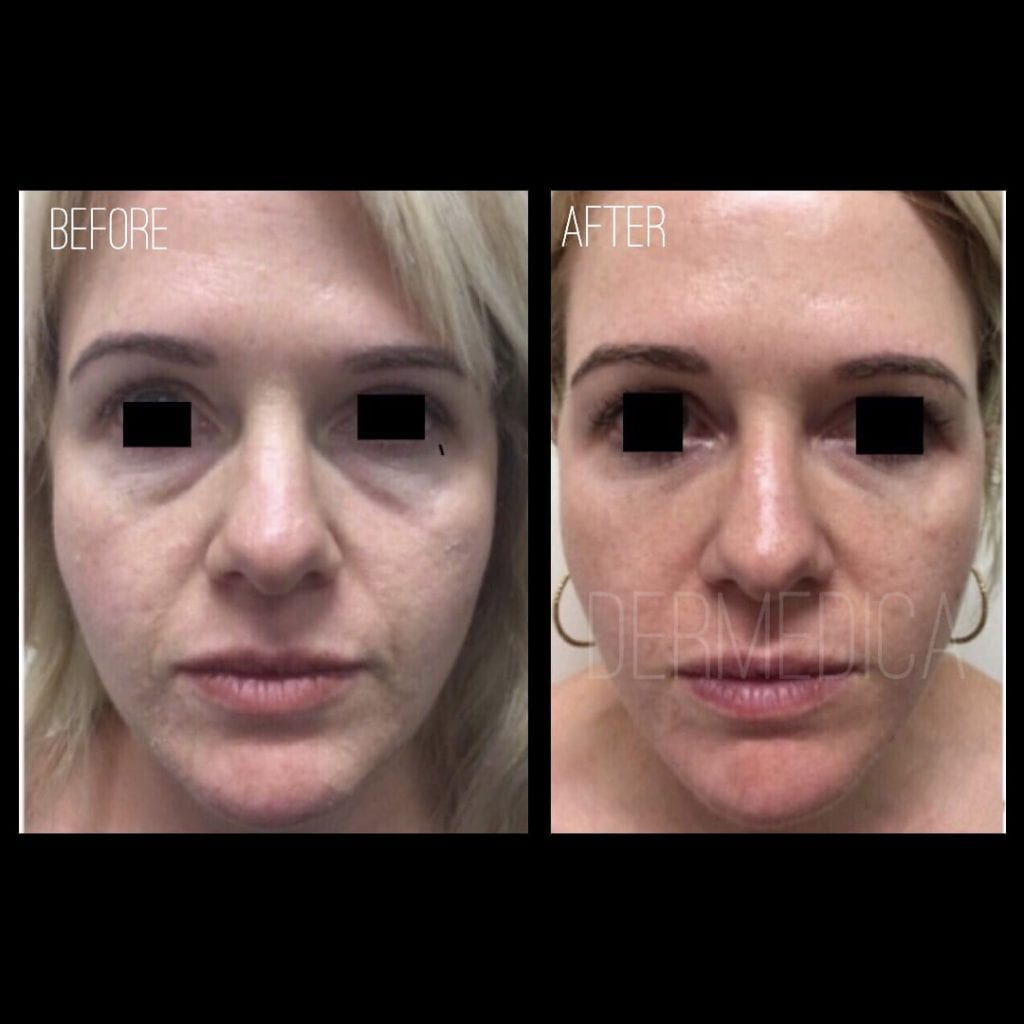 Non surgical face lift before and after photos