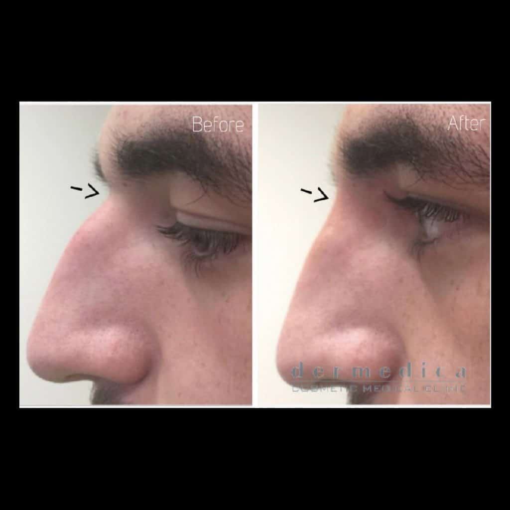 Nose Fillers