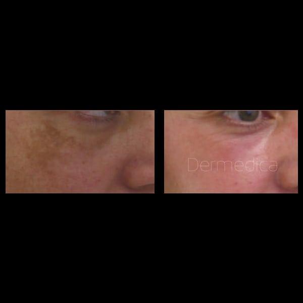 pigmentation removal perth