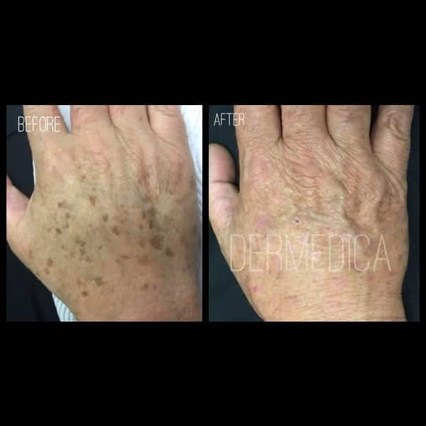 Pigmentation on hands