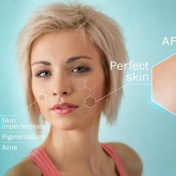 Peel treatment Aftercare