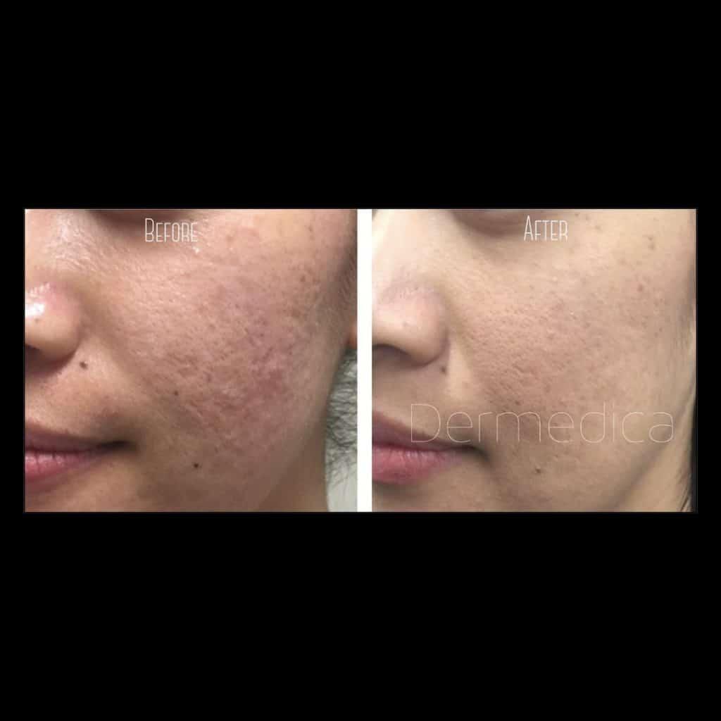 acne scars cheeks