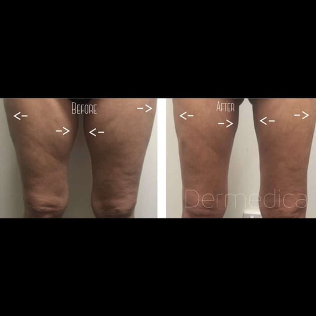 Non-Surgical Liposuction Perth