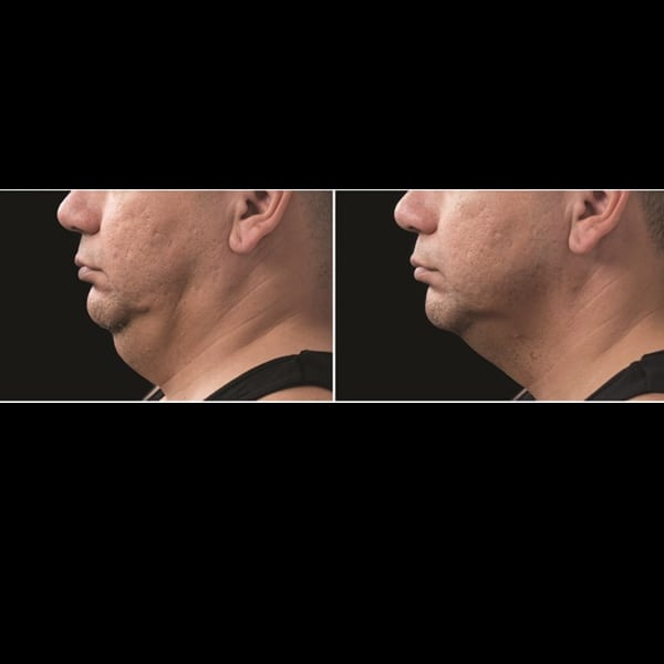coolsculpting double chin before and after, double chin treatment