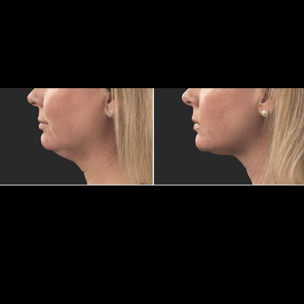 Coolsculpting for double chin, double chin reduction
