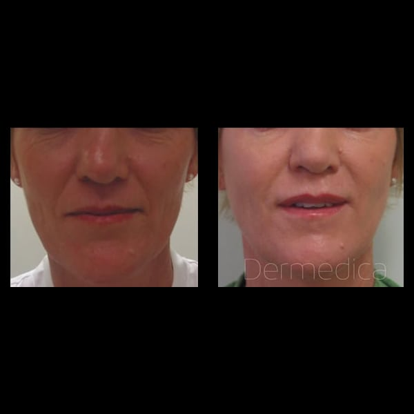 Non-Surgical Liquid Facelift | Dermedica | Look Young Without Surgery