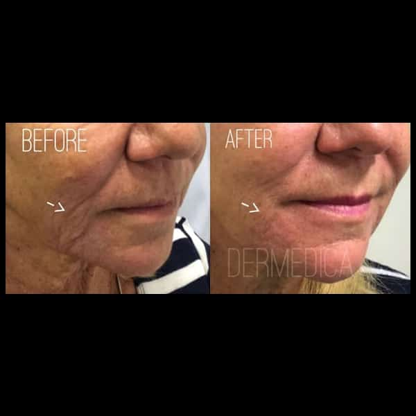 nasolabial fold filler before and after