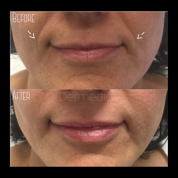 Dermal Fillers Smile lines before and after
