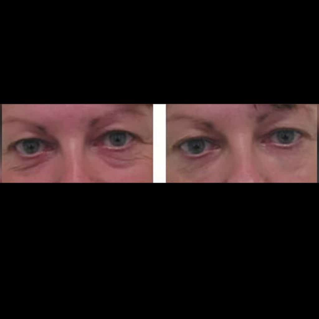 before and after under eye treatment