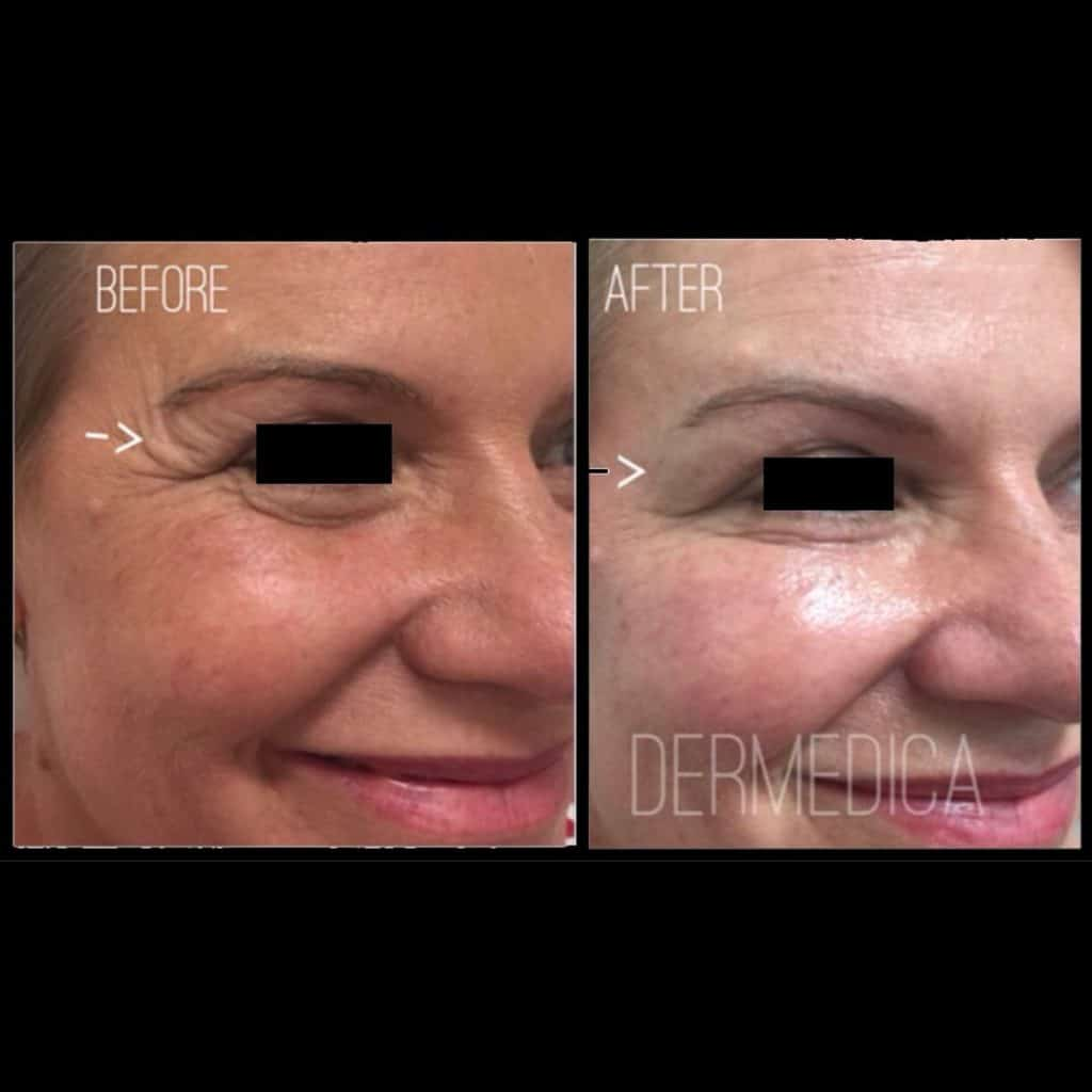 The Long Term Effects of Anti-Wrinkle Injections