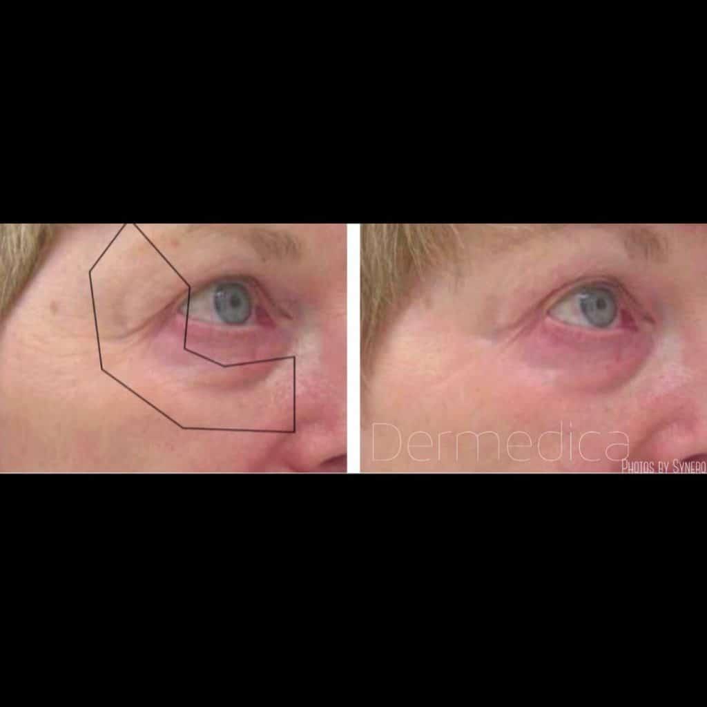 under eye wrinkle treatments