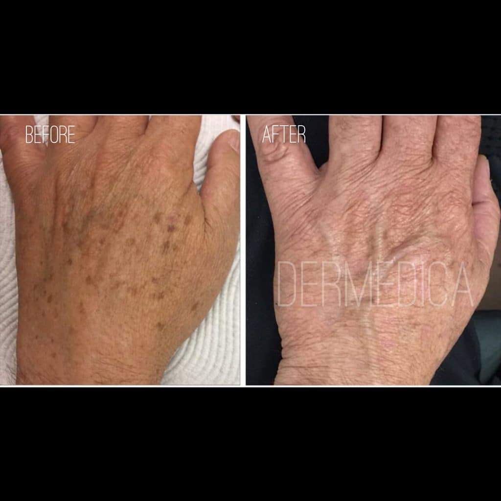 freckle removal perth