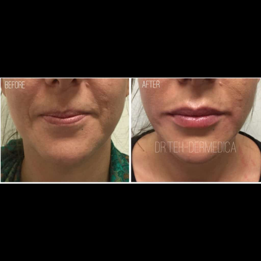 Cosmetic Treatment Face