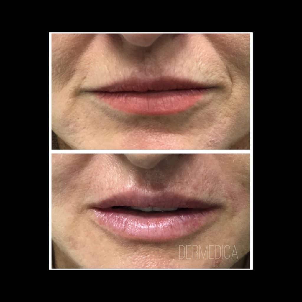 lip fillers perth