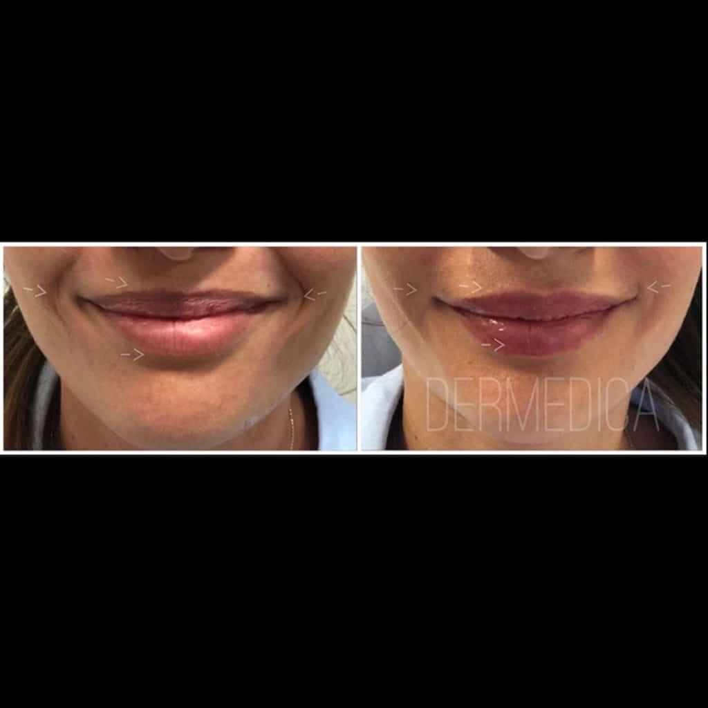 lip enhancement perth