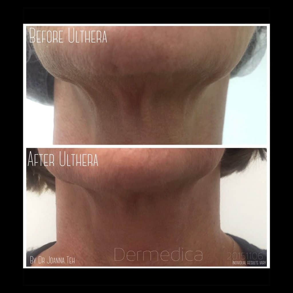 neck treatments perth