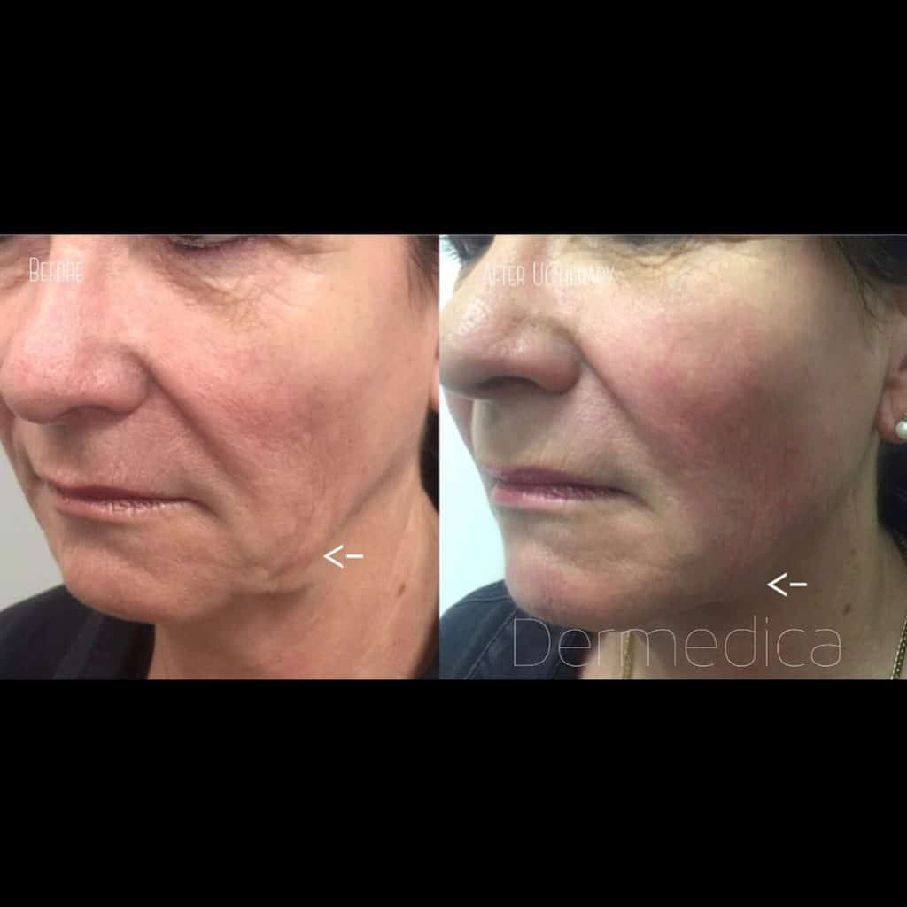 Non-surgical Skin Lifting Treatment | Dermedica | Skin