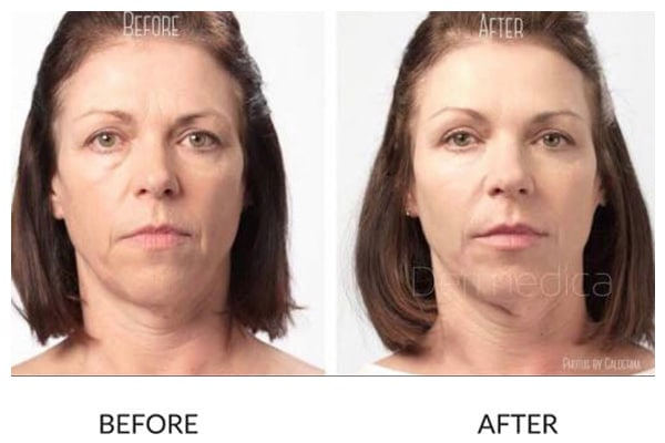 Cheeks, Non-Surgical Facelift