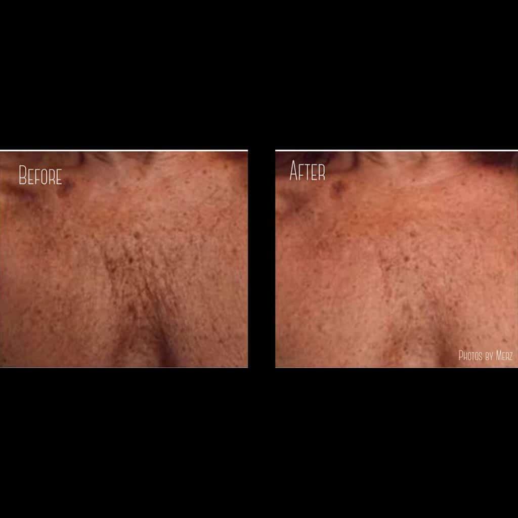 chest wrinkles treatment