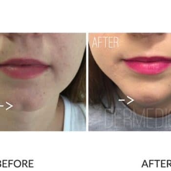 chin filler cover