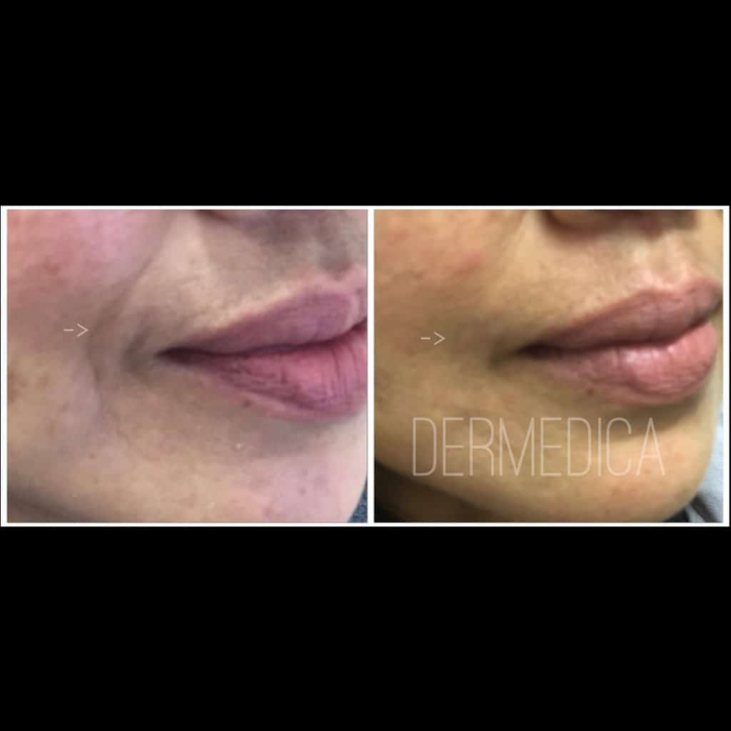 Smile lines filler Before and After