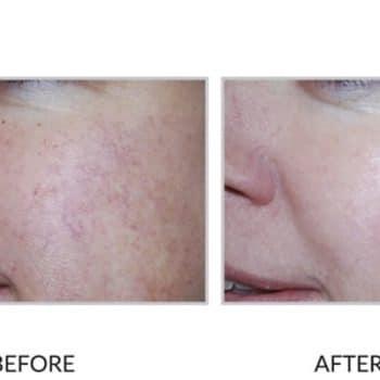 rosacea treatment perth