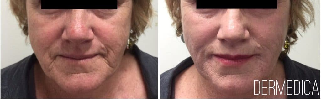Dermal filler in cheeks before and after