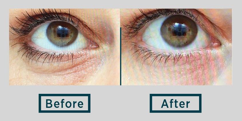 skin needling eyes