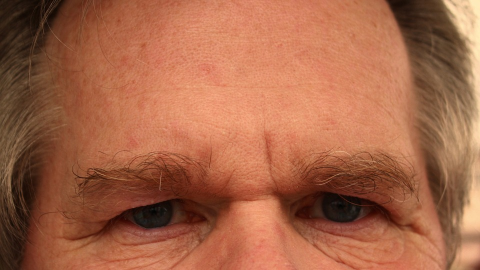 Things you should know before you have anti-wrinkle injections for your forehead and frown lines