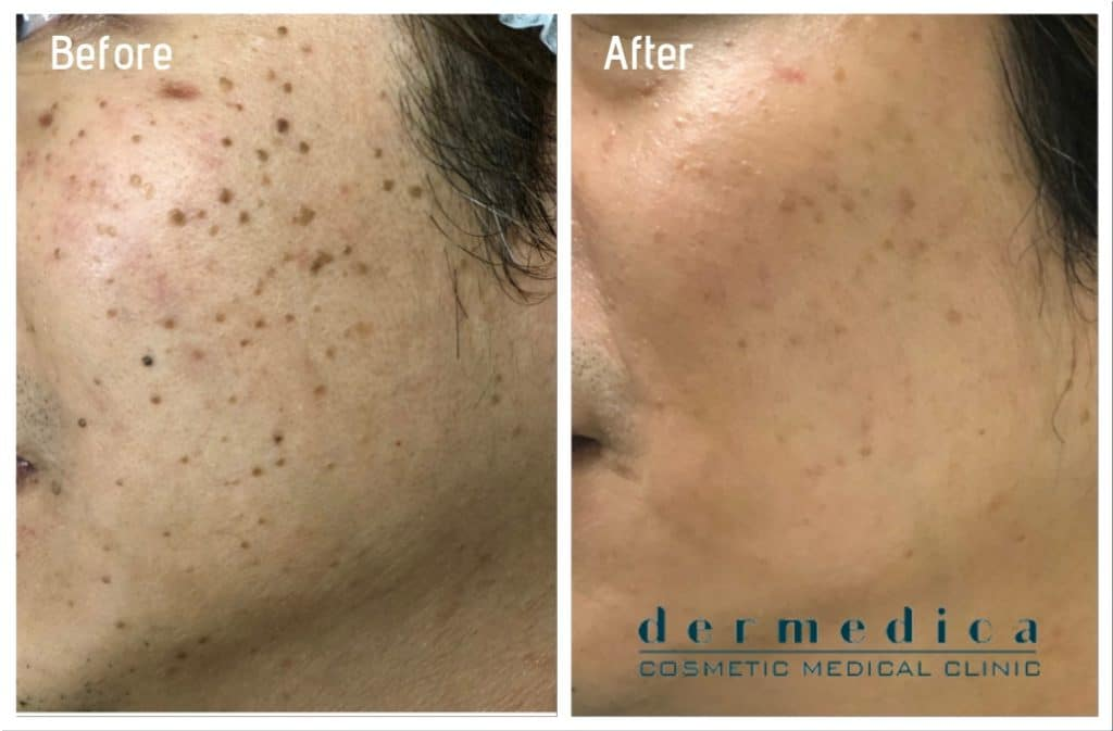 Mole And Skin Tag Removal Dermedica Freckle Removal In Perth