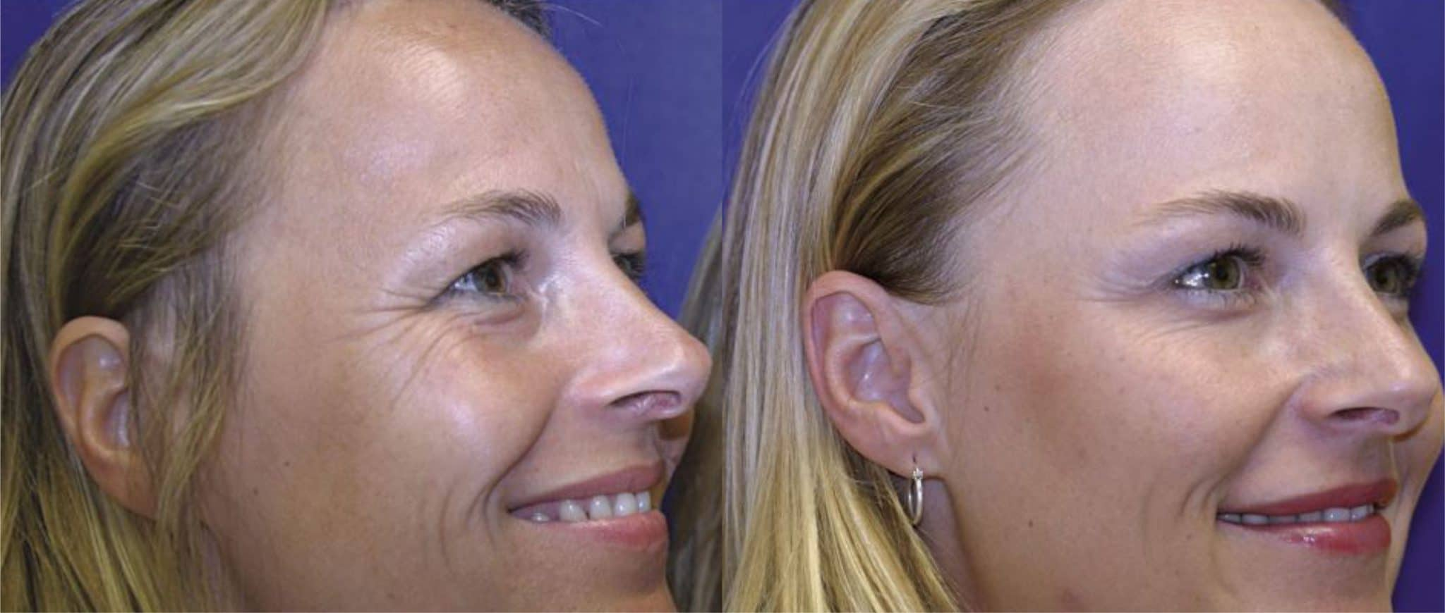 Do anti wrinkle injections prevent wrinkles?