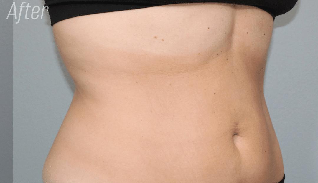After tummy trusculpt