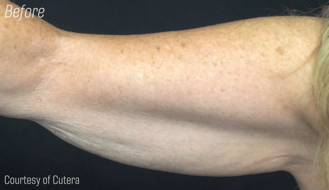 Trusculpt Arm fat reduction, body contouring