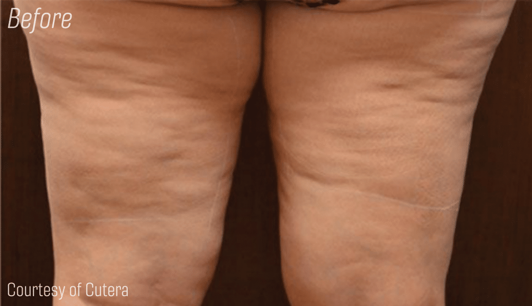 Trusculpt leg cellulite reduction, before and after
