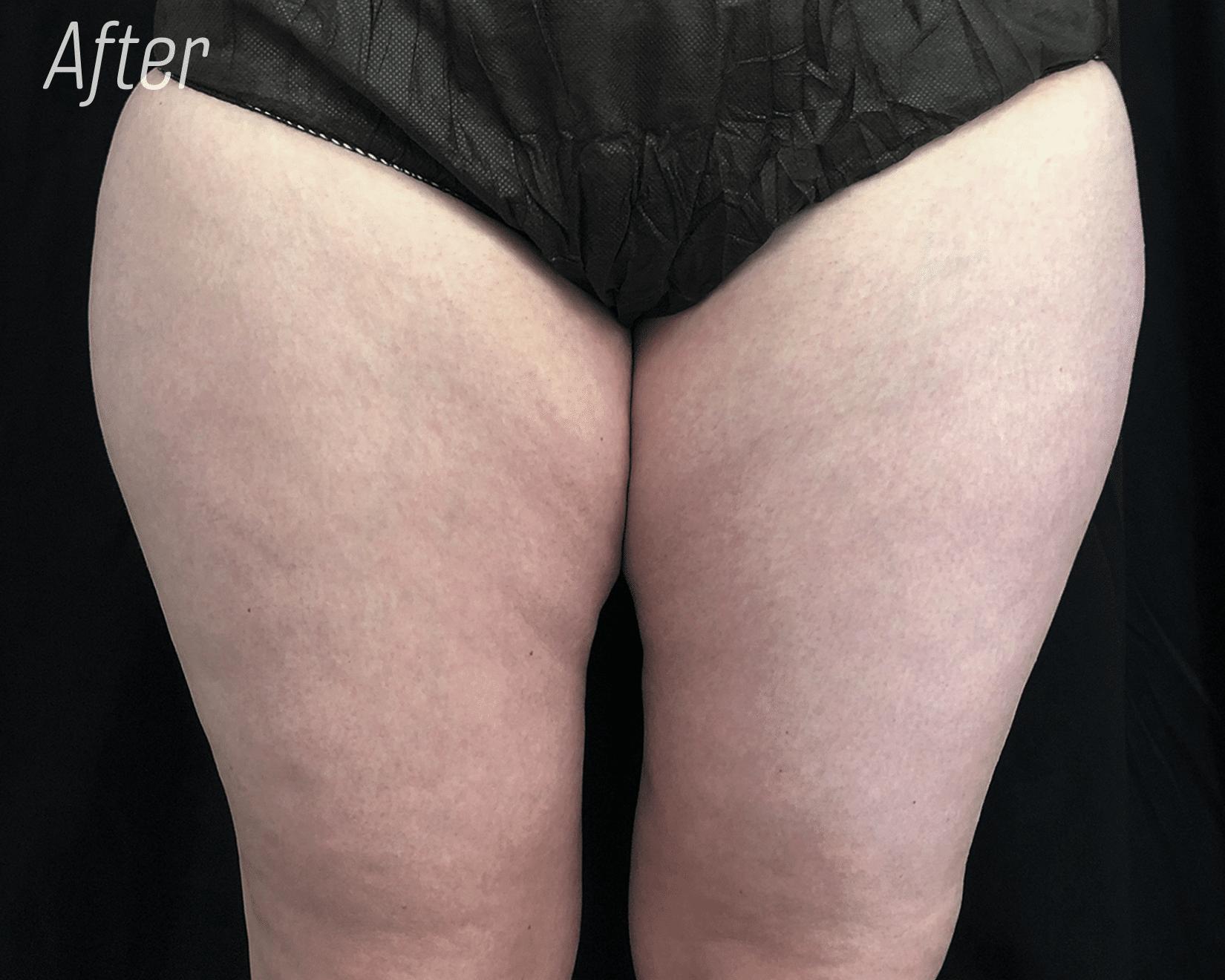 Legs trusculpt After